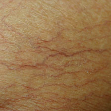 Typical Spider Veins