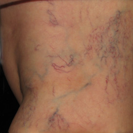 Typical Appearance of Spider Veins