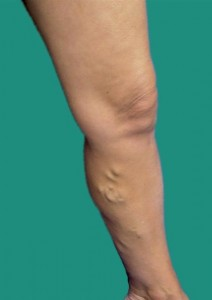 Typical Appearance of a Varicose Vein