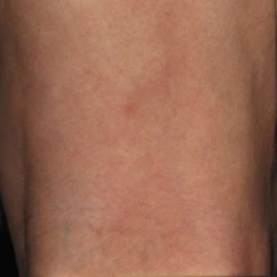 Before And After Vein Photos