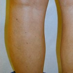 After Varicose Vein Treatment