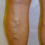 Before Varicose Vein Treatment