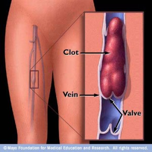 Dvt deep venous thrombosis treatment blood clot thrombolysis