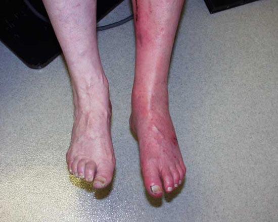 Varicose Vein Leg Swelling Cardio Vascular Austin