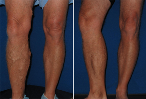 leg edema treatment austin leg ankle foot swelling therapy