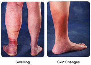 Leg Edema Treatment Austin - Leg Ankle Foot Swelling Therapy